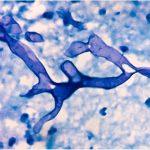 قارچ سیاه و کووید۱۹؛ ماسکها محل مناسب رشد قارچهای سیاه هستند؟